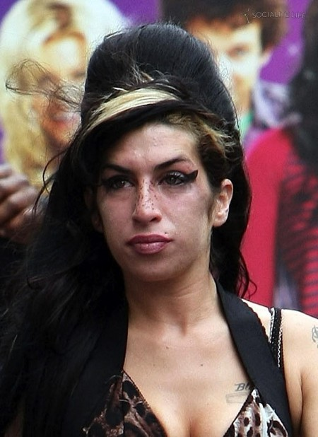 Amy Winehouse Freckles