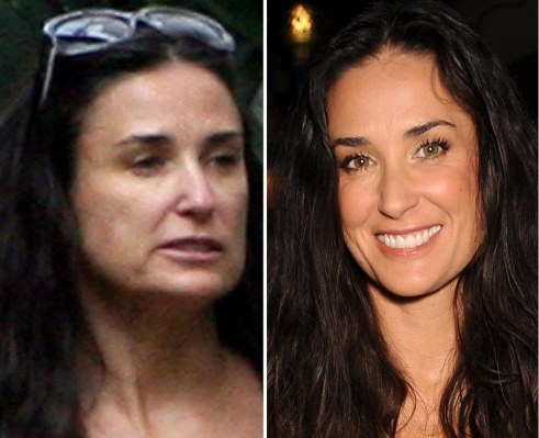 Demi Moore Plastic Surgery Before And After