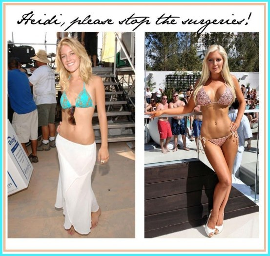 Heidi Montag Before And After Young