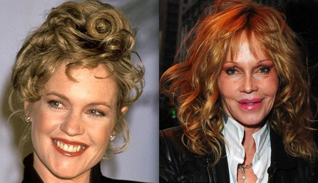 Melanie Griffith Surgery Before After