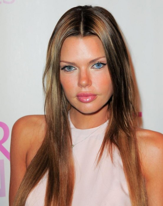 Sophie Monk Plastic Surgery Plastic Surgery Before And After
